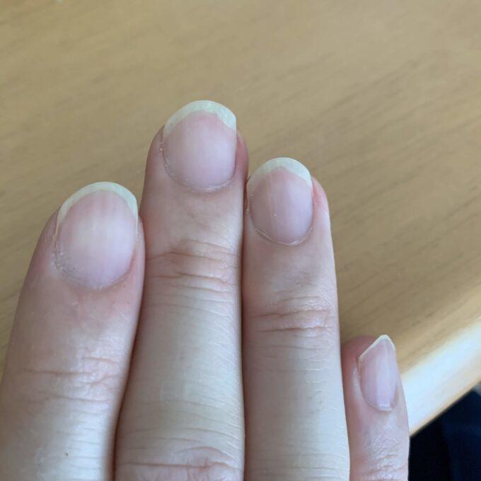 折れた爪をしているクラシックギター弾きの爪の形 その1