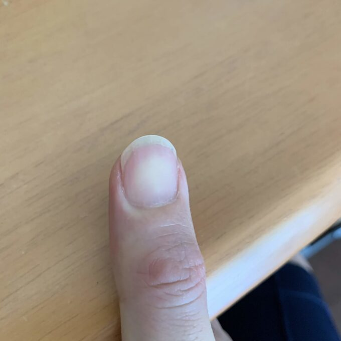 折れた爪をしているクラシックギター弾きの爪の形 その2