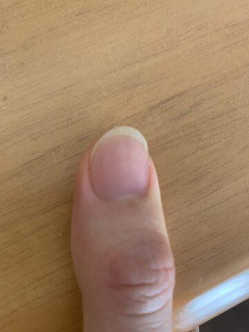 クラシックギター用の親指の爪の形